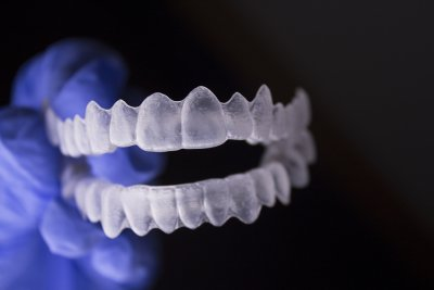 Invisalign treatment at Damascus Dental Group